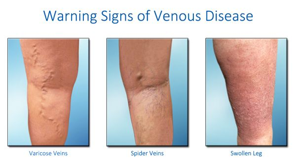 Vascular disease symptoms - If you have already started to develop ...