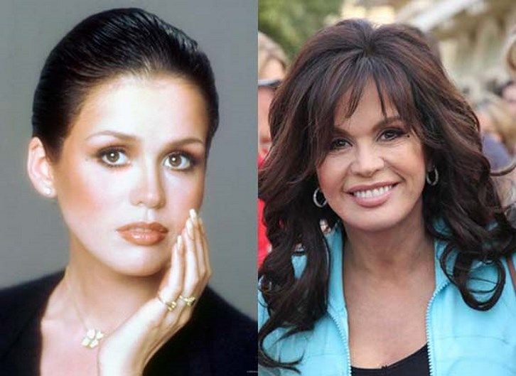 Marie Osmond Plastic Surgery Before and After Photos | nails,nails ...