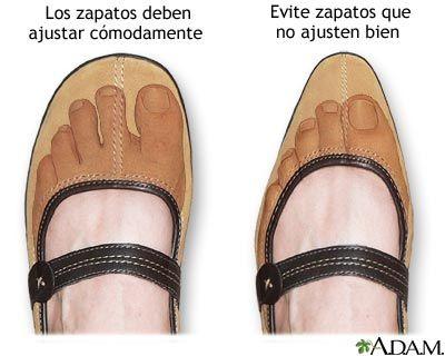 Te Aprietan Los Zapatos Con Este Increíble Y Excelente Truco Podrás Volver A Ponértelos Zapatos Ortopédicos Zapatos De Cuero Podología