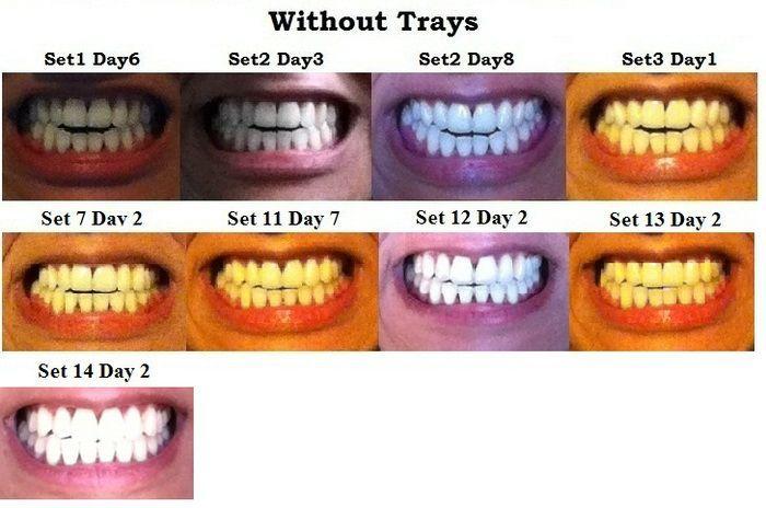 invisalign vs braces cost