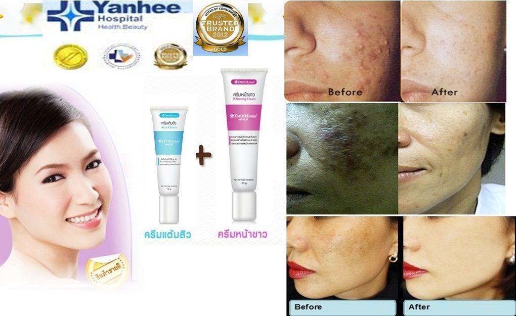 Yanhee Hospital Skin Lighteners #ebay #Fashion