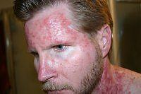 Efudex Photos Treatment For Actinic Keratosis Health Pinterest