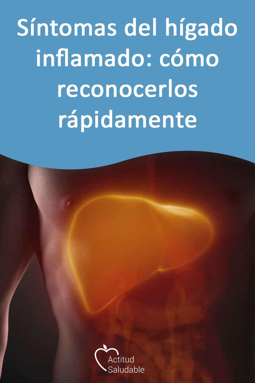 Síntomas del hígado inflamado: cómo reconocerlos rápidamente