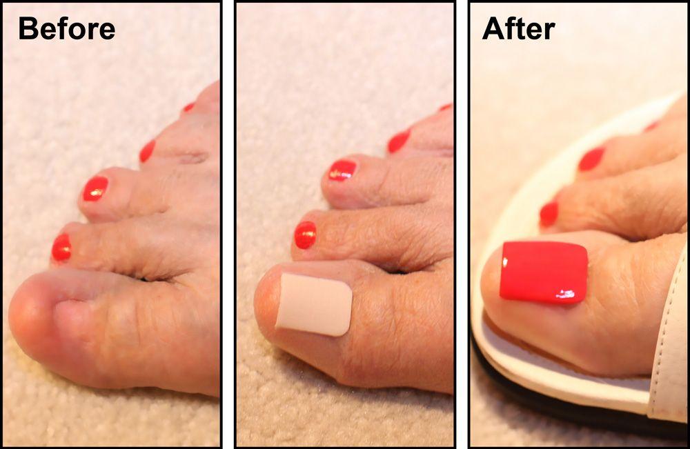 New Invention Cosmetic Adhesive Wrap To Conceal A Damaged Or Missing Toenail Polish And Apply Like A Bandage Nail Fungus Cure Acrylic Toe Nails Nail Fungus