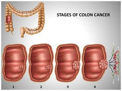 Make a professional looking ppt presentation on topics related to for this colon cancer ppt template is used by many medical professional for their upcoming presentation toneelgroepblik Images