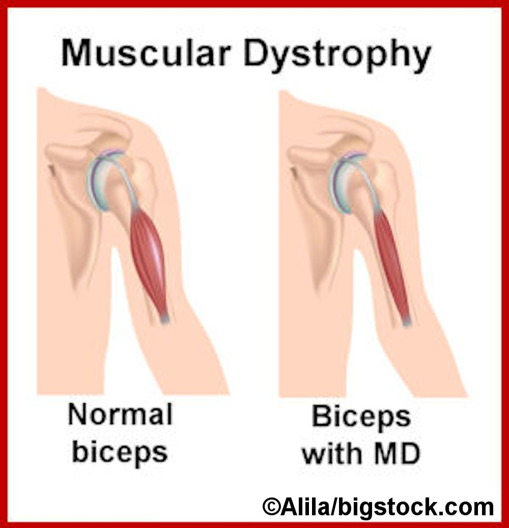 muscular dystrophies muscular dystrophy myosin muscular dystrophies muscular dystrophy myosin deficiency causes muscle weakness and