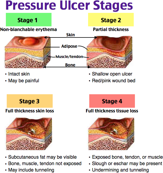 Rosh Review Pressure Ulcer Staging Wound Care Nursing Nursing Study Tips