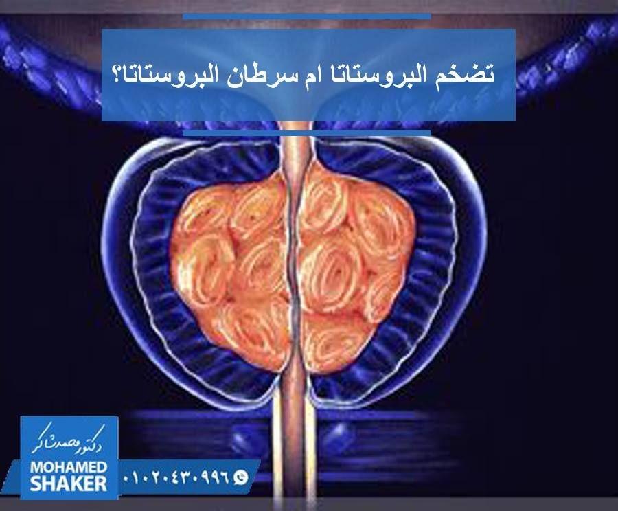 وبيا السرطان في عصر زيادة نسبة الإصابة بالسرطانات المختلفة أصبح لدينا خوف دفين من أي ورم يظهر في الجسم فمثلا الإصابة بتضخم البروستاتا توق Prostate Shaker