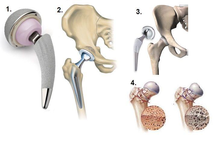 Тазобедренный сустав протез фото