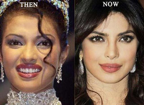 dating after plastic surgery