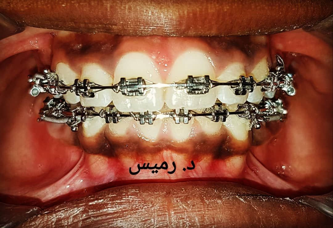 تقويم شفاف تقویم اسنان طبيب اسنان كويت عمان سعودية Ceramicbraces Clearsmile Clearaligners Kuwaitorthodontist Orthodontist Orthodontics Smilestyl