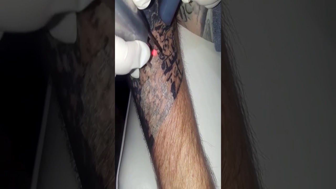 Pin on Laser Tattoo Removal Houston, TX