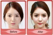 South Korea plastic surgery before and after photos – Liposculpture Before and A… – megan
