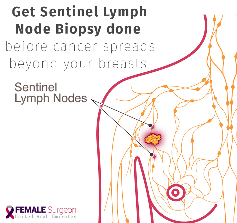 Sentinel lymph node biopsyis a diagnostic procedure to check if breast  cancer has spread to the lymph nodes. At #AlZahraCancerCenter, we provide  breast ...