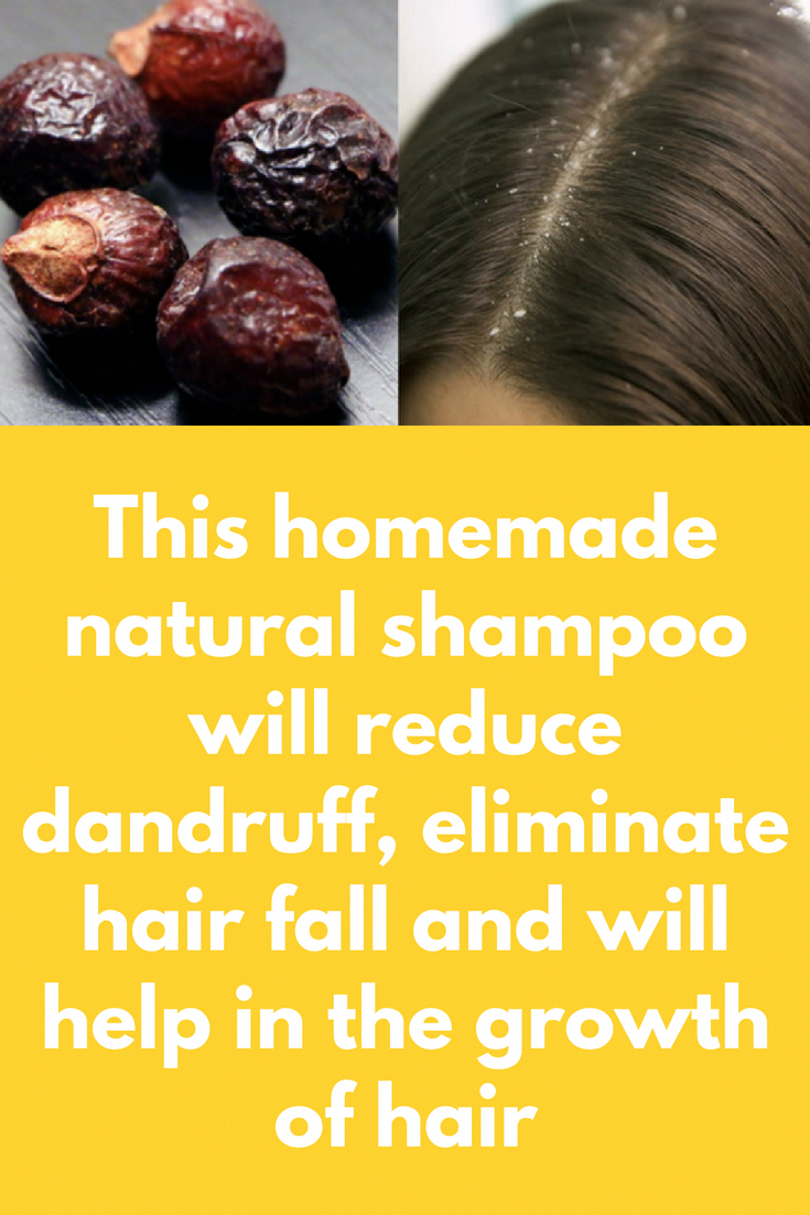 This homemade natural shampoo will reduce dandruff, eliminate hair fall and will help in the growth of hair The ingredients are natural and give 100% ...