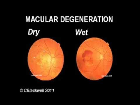 Understanding Age Related Macular Degeneration Youtube