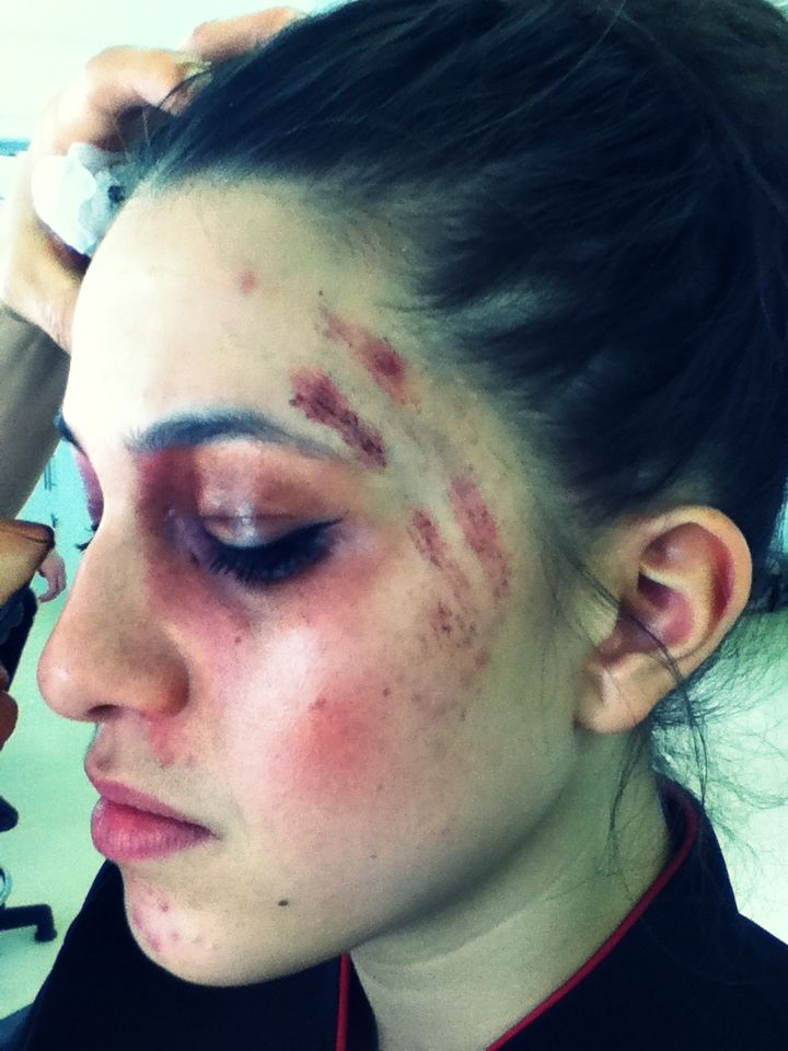 Bruises And Scratches Special Effects Makeup Pinterest