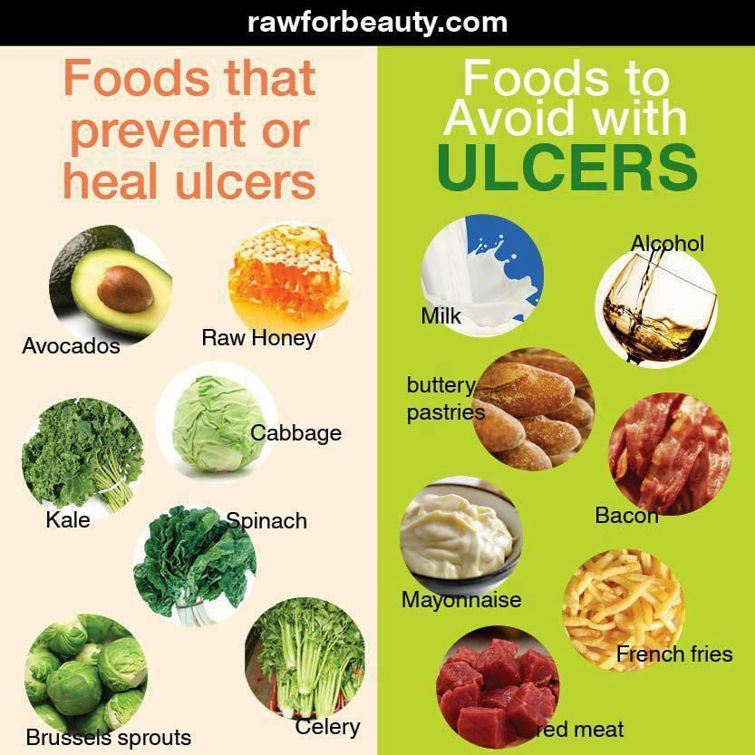 Foods that prevent or heal ulcers   Holistic Remedies