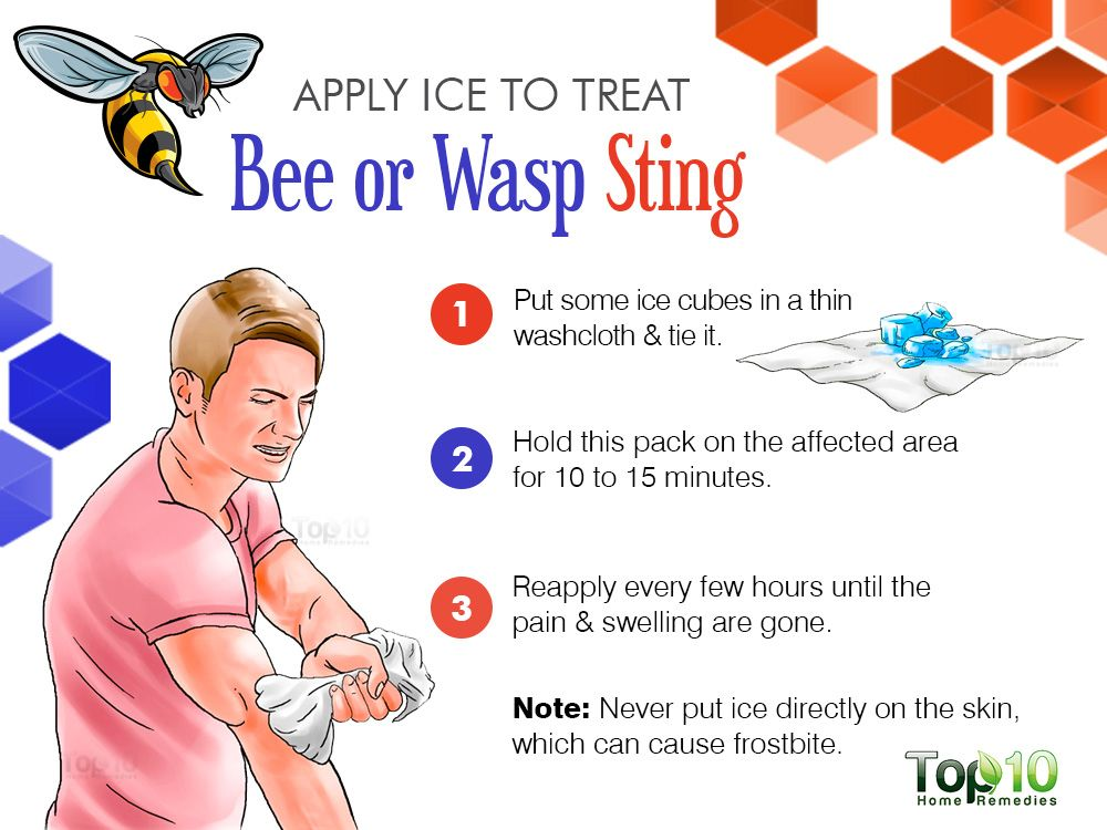 How To Treat A Bee Or Wasp Sting Top 10 Home Remedies Wasp Stings Remedies For Bee Stings Bee Sting Relief