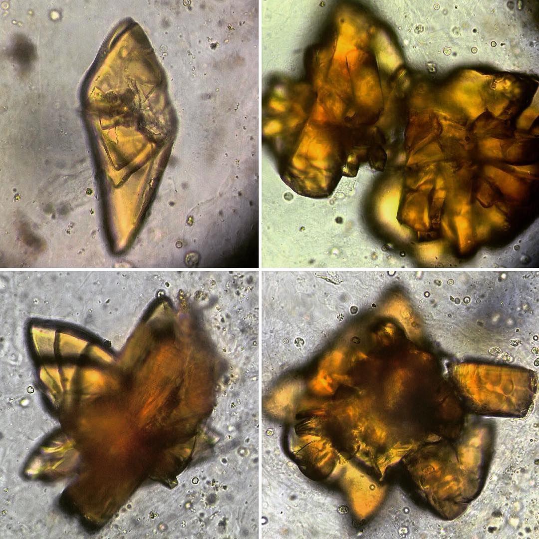 Diferentes Maclas De Acido Urico Y Con Un Intenso Color Amarillo Marron Laboratory Lab Microscope Microscopy Analytics Urinarios Cristales Sedimentarias