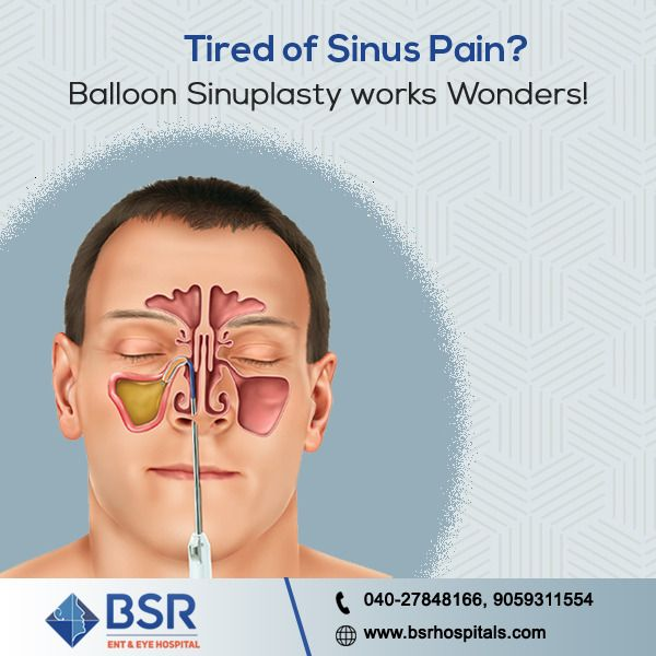 Balloon Sinuplasty Surgery Is Clinically Proven To Provide Excellent