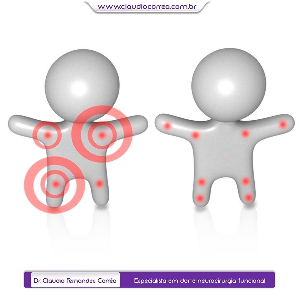 Fibromialgia e a importância de um tratamento multidisciplinar