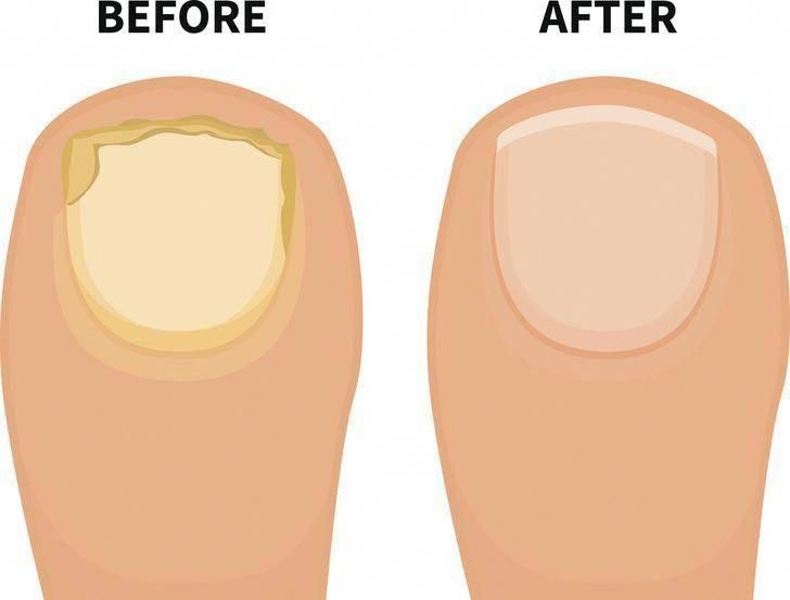 how to get rid of pearly penile papules (bumps) in 3 days
