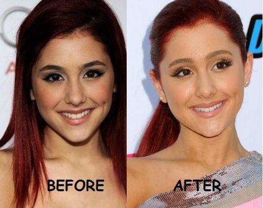 Ariana Grande Before And After Nose Job Ariana plastic surgery  when