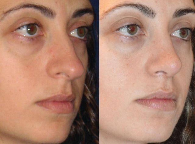 Rinoplastia tabique desviado antes y despues de adelgazar
