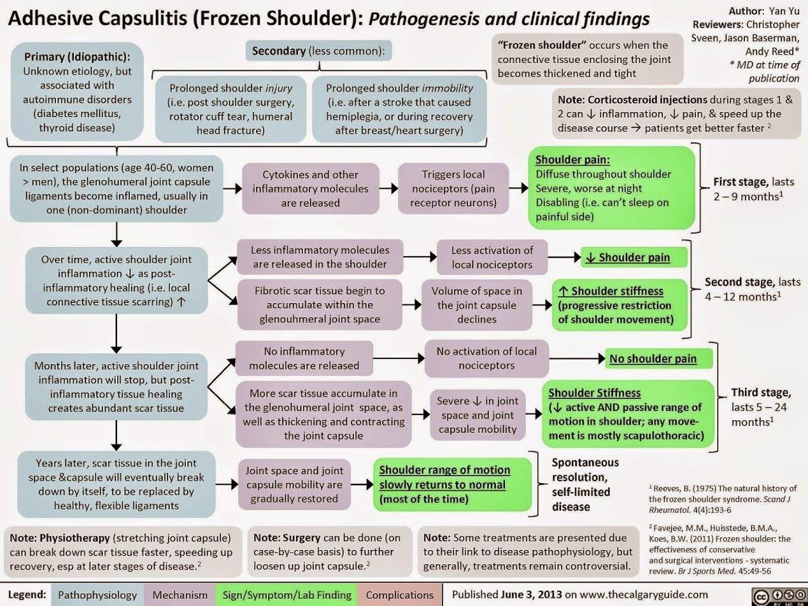 Treatments For Frozen Shoulder The Pathology Of Frozen Shoulder Frozen Shoulder Treatment Frozen Shoulder Physical Therapy Shoulder