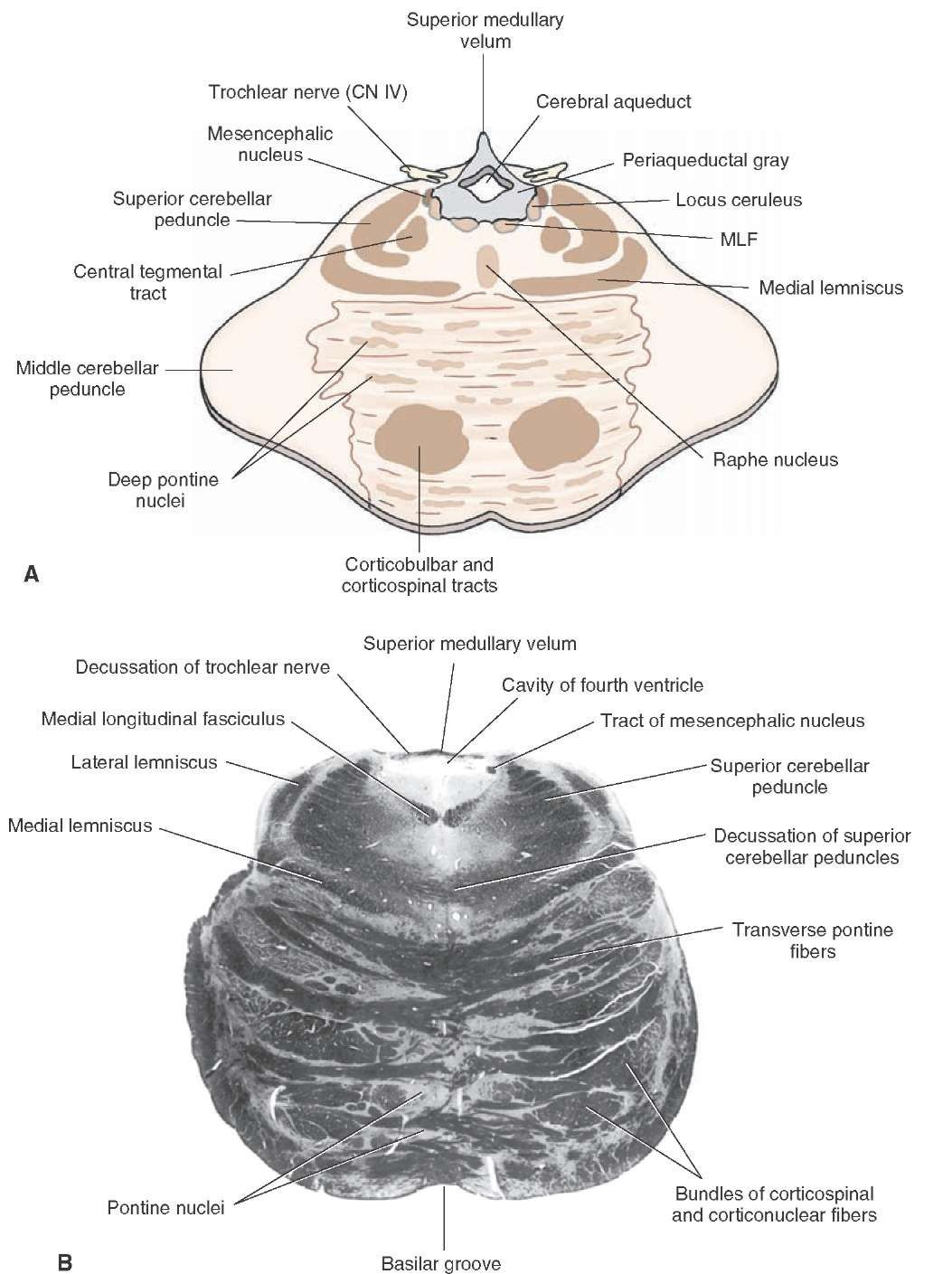 A) Diagram of a cross section through the upper pons at the level of ...