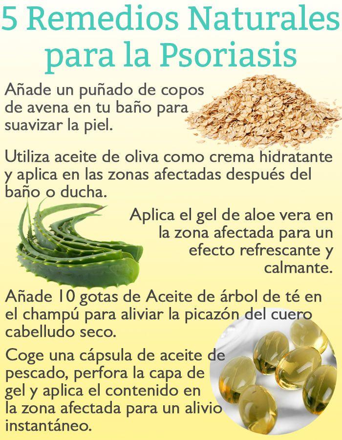 remedios caseros para la cara psoriasis