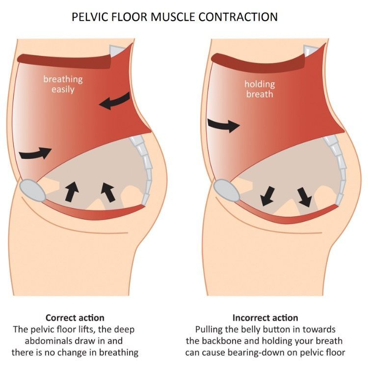 Do you suffer from weak a pelvic floor? This is a common
