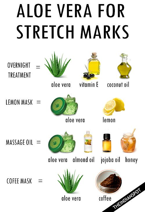 Aloe Vera For Stretch Marks Aloe Vera Stretch Marks Skin Care Natural Skin Care