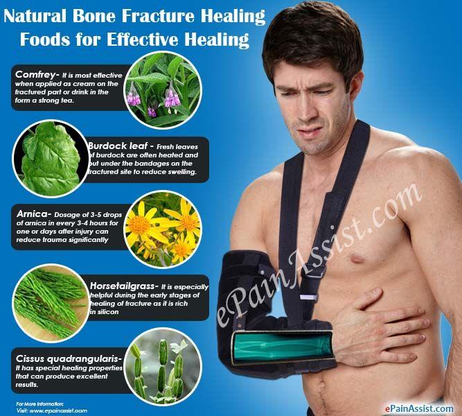 Bone Fracture Healing Foods Or Bone Healing Supplements That Promote Healing Fracture Healing Bone Healing Healing Food