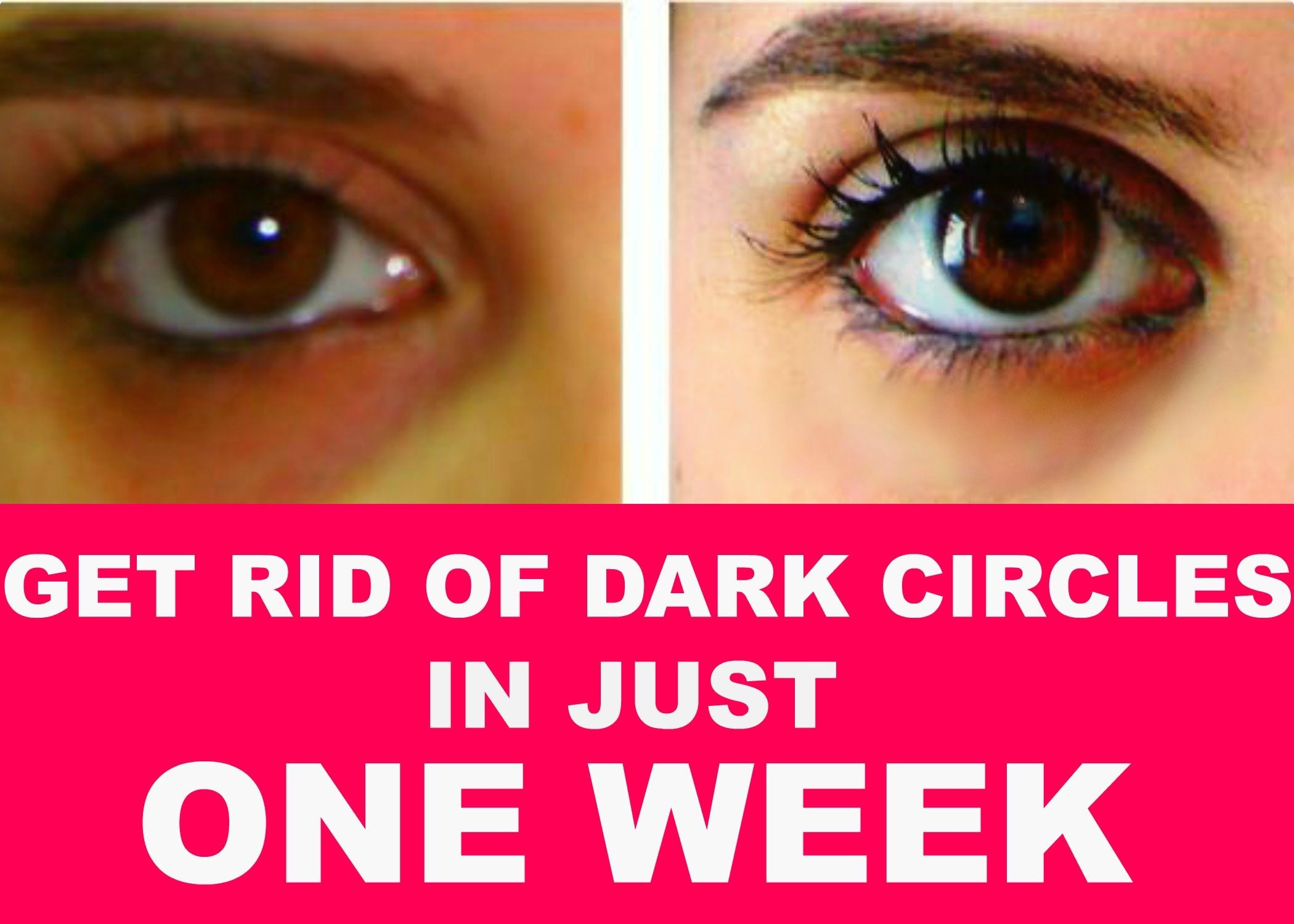 HOW TO GET RID OF DARK CIRCLES UNDER EYES IN 1WEEK: 8 ...