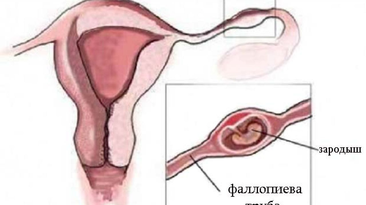 ما هي أعراض وجود كيس على المبيض Ovarian Cyst Ovarian Cysts