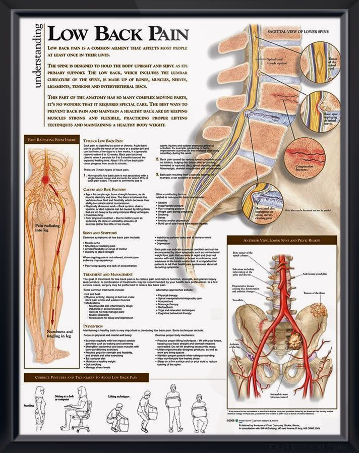 Low Back Pain anatomy poster shows lower spine, pelvis tumors ...