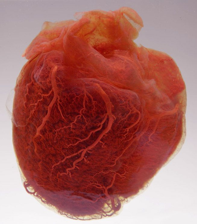 a human heart on display at the Mütter Museum in Philadelphia, PA ...