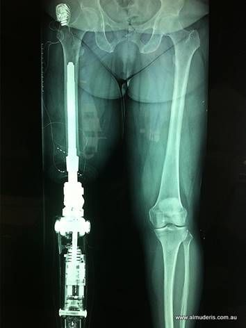 Direct Skeletal Prosthesis Osseointegration Osseointegration And Its Application For Amputees Prosthetic Leg Orthotics And Prosthetics Prosthetic Device