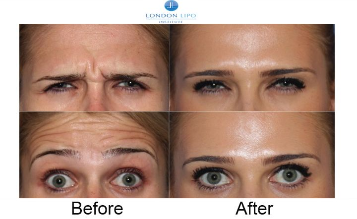 Botox treats lines and wrinkles and is an easy safe fast