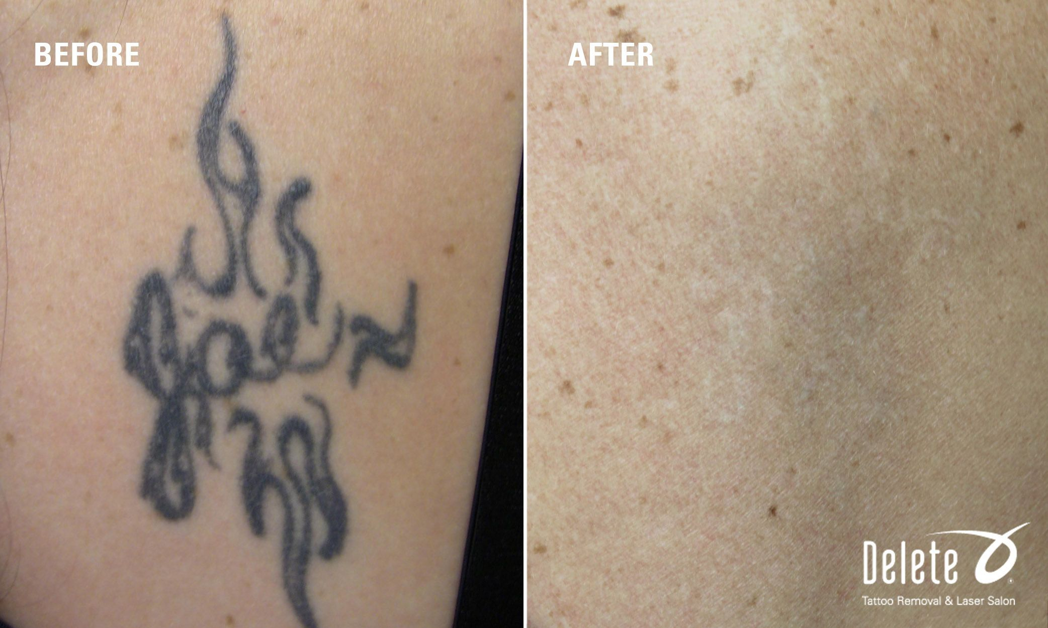 Arm You Glad It Before After Tattoo Removal Monday Another Happy Patient S Results Using The Picoway Laser Tattoos Tattoo Removal Laser Tattoo Removal