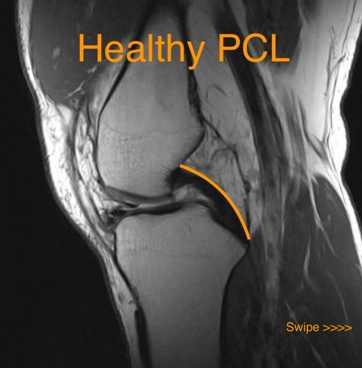 Normal MRI of a healthy Posterior cruciate ligament PCL | Anatomy ...
