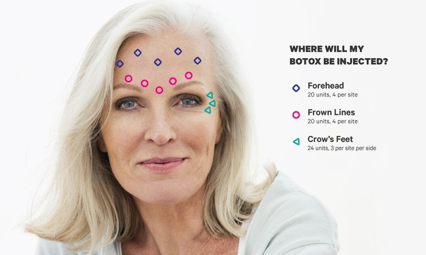 Botox Forehead & Face Guide: What to Know in Simple ...