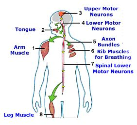 for What causes motor neuron disease mnd