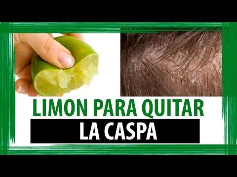 Que sirve para eliminar la caspa del cabello