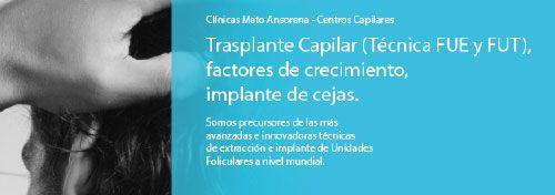 Trasplante Capilar: En Clínicas Mato Ansorena, entendemos perfectamente cómo la pérdida de cabello puede afectar su vida personal, social y profesional. También entendemos que un trasplante de cabello efectivo puede influir prácticamente en todos los aspectos de su vida. Nuestro objetivo es, mediante las más avanzadas técnicas de transplante capilar, mejorar la autoestima y el bienestar de nuestros pacientes.  http://www.clinicasmatoansorena.com/transplante-capilar-madrid/