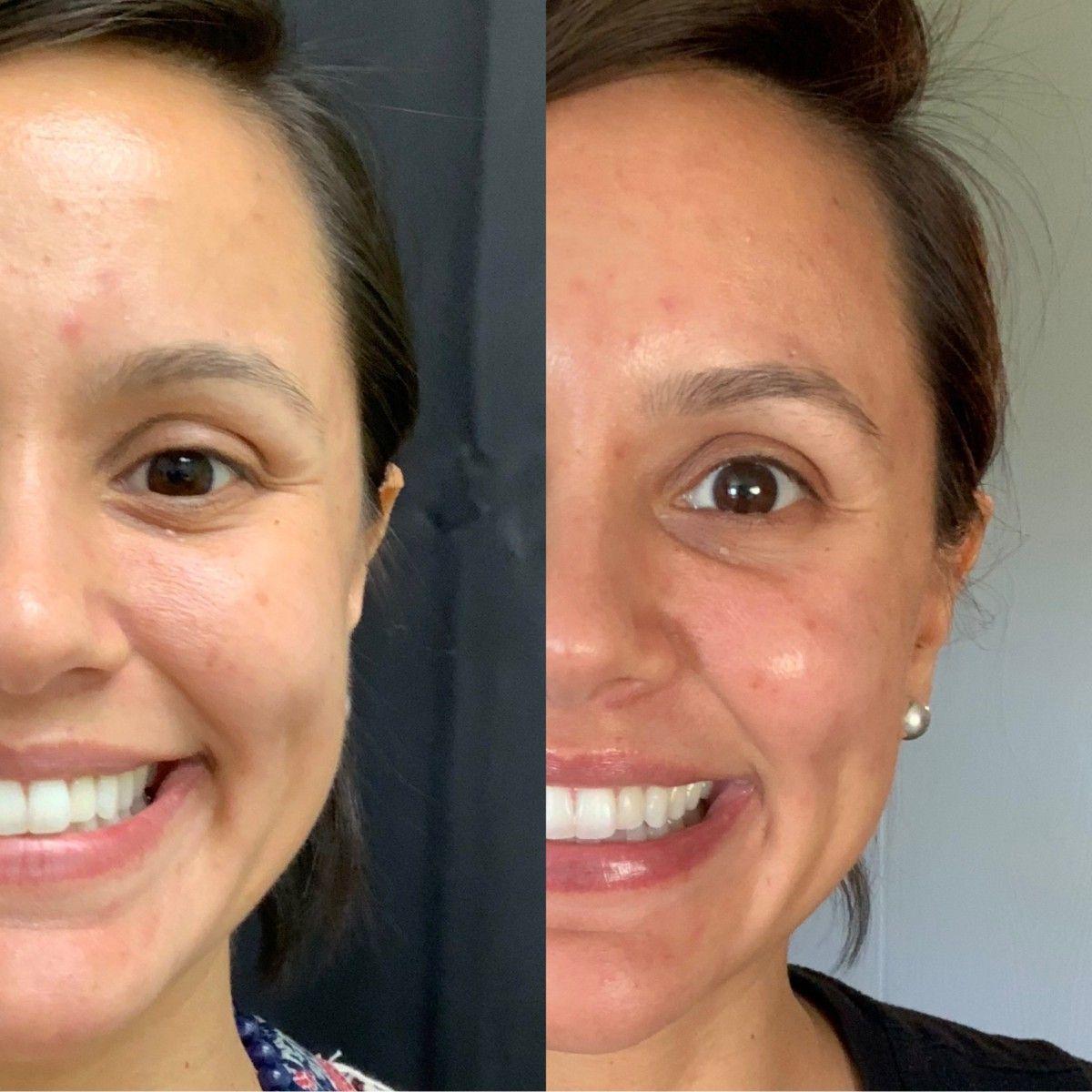 My Vampire Facial Aka Prp Facial Platelet Rich Plasma Vampire Facial Facial Facial Before And After