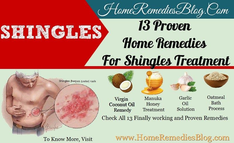 13 Powerful Home Remedies For Shingles Treatment Shingles