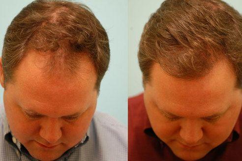 Hair Growth Now In 2020 Hair Loss Hair Loss Treatment Baldness